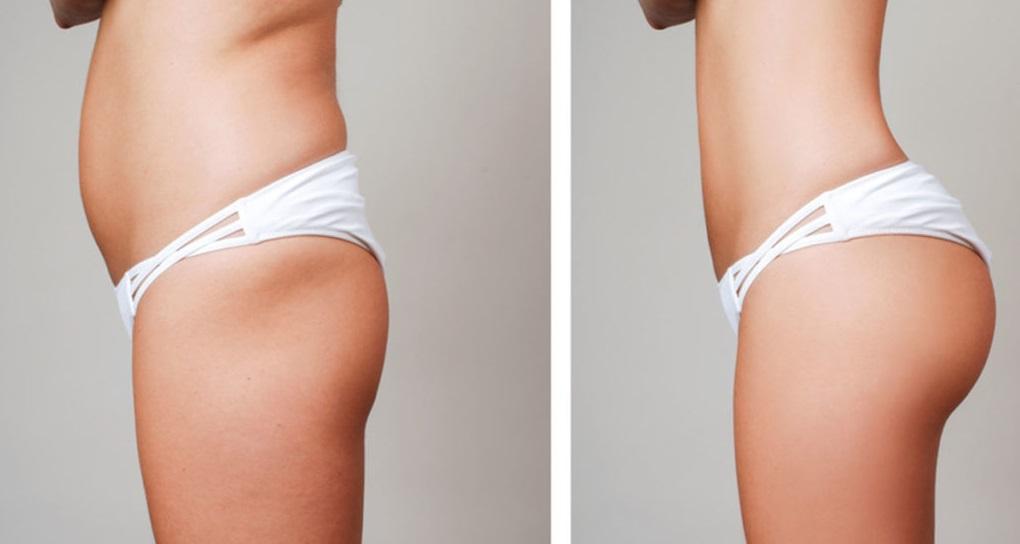 Liposuction (Yağ Aldırma) Ameliyatı