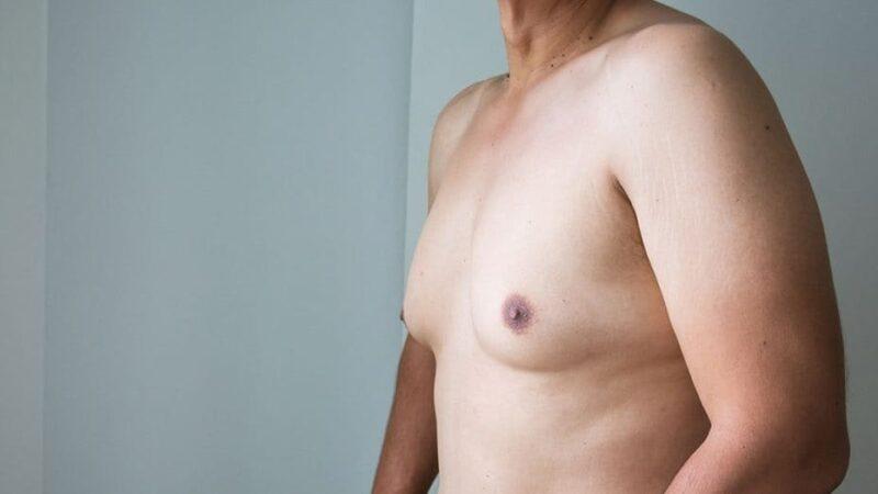 Jinekomasti (erkeklerde meme küçültme operasyonu)